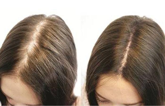 Vichy для роста волос фото