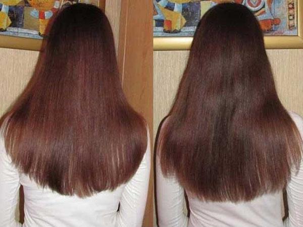 Эстель для роста волос фото