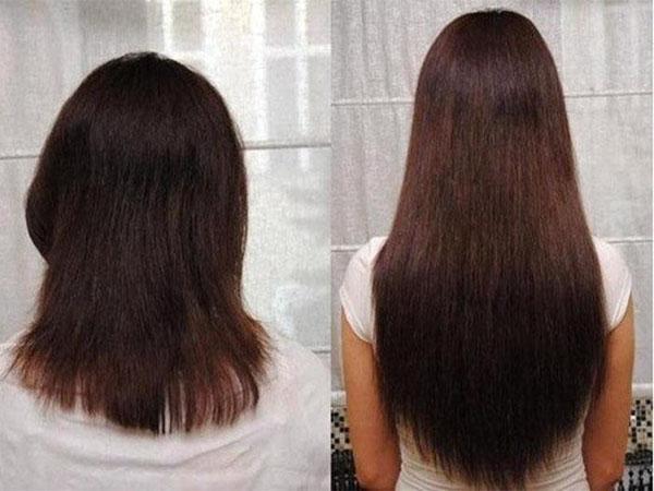 Что такое стимулятор роста волос