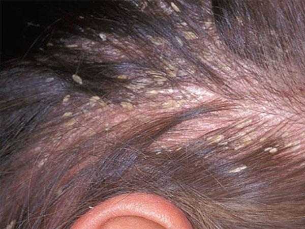 Мазь для кожи головы от болячек