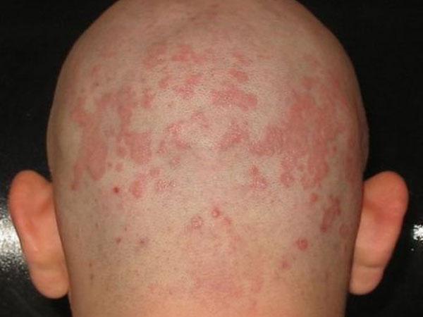 Мелкие красные пятна на коже головы thumbnail