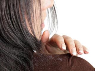 Как вылечить сухую себорею на голове медикаментами