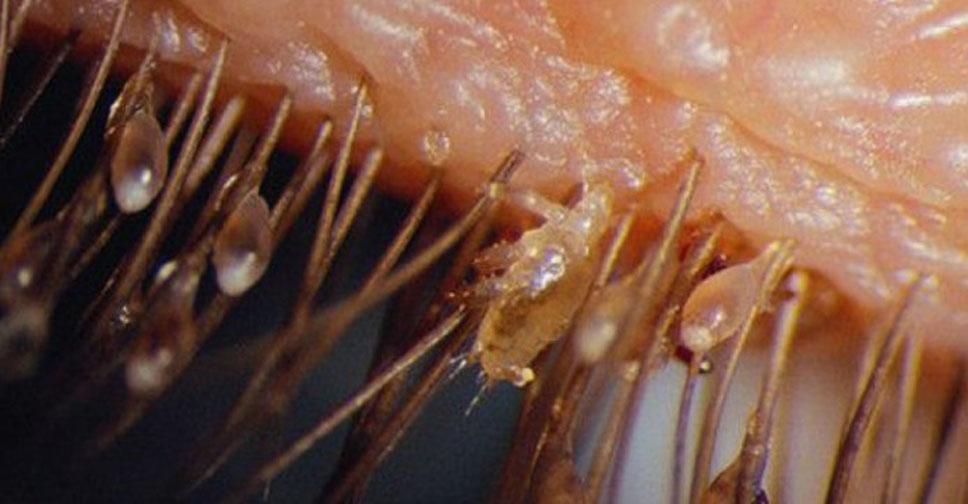 Через сколько дней вылупляются вши из гнид: инкубационный период, сколько дней созревают яйца и через какое время выводятся вши?