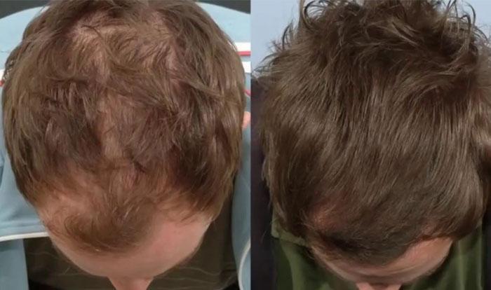 Как разводить димексид для волос: видео-инструкция по лечению своими руками, применять при выпадении, рецепт запатентованной маски с витаминами, применение, вред, фото и цена