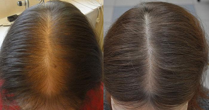 Андрогенное выпадение волос у женщин лечение