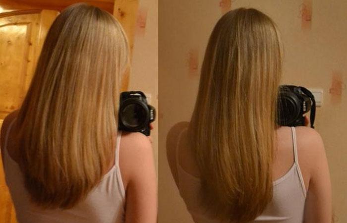 мильгамма уколы от выпадения волос