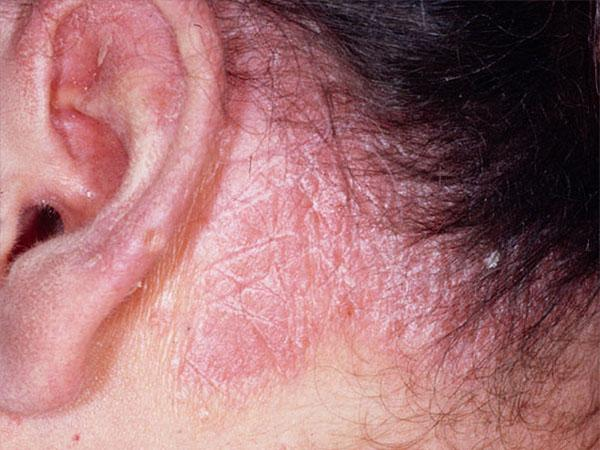Жирная себорея кожи лица: комплексное лечение
