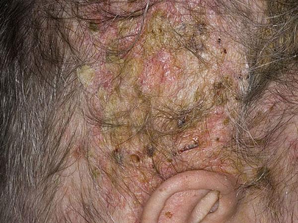 Жирная себорея кожи головы: симптомы, лечение, фото