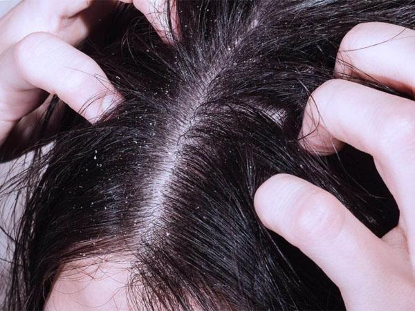 Причины выпадения волос у женщин 30 лет, лечение и отзывы о процедурах