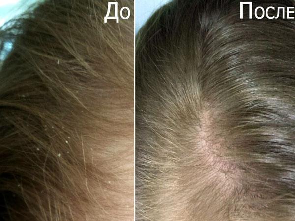Мытье волос при псориазе головы