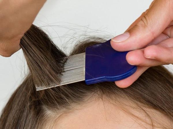 Гребень от вшей и гнид: сколько стоит и где продаётся гребешок? – Здоровье волос