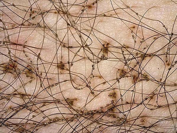 Как выглядят гниды вшей картинки 33