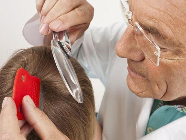 Обзор лекарств и препаратов для выведения вшей и гнид