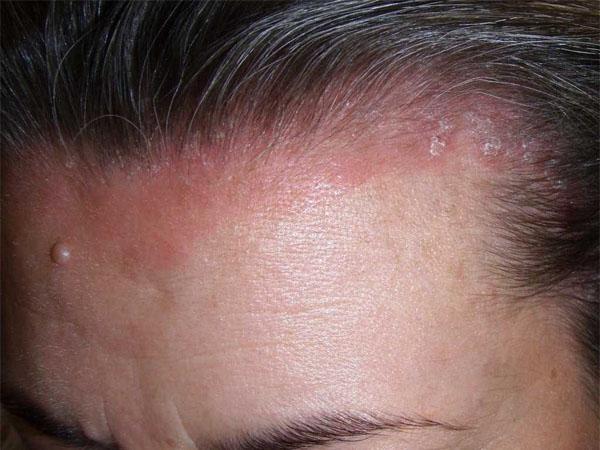 Спрей от псориаза на теле и волосистой части головы