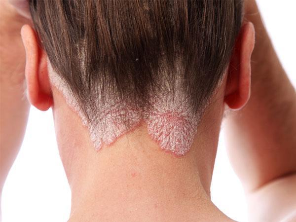 Народные средства от псориаза волосистой части головы