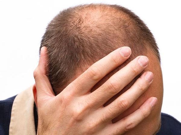 Средство против роста волос у мужчин