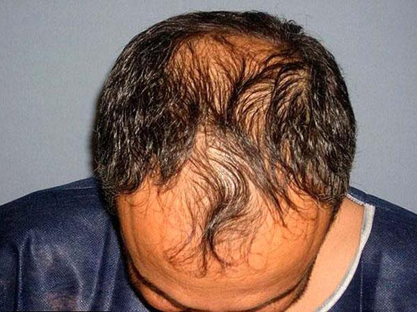 Как остановить выпадение волос при климаксе лечение