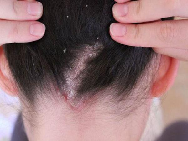 Демодекоз кожи головы: фото, симптомы и лечение