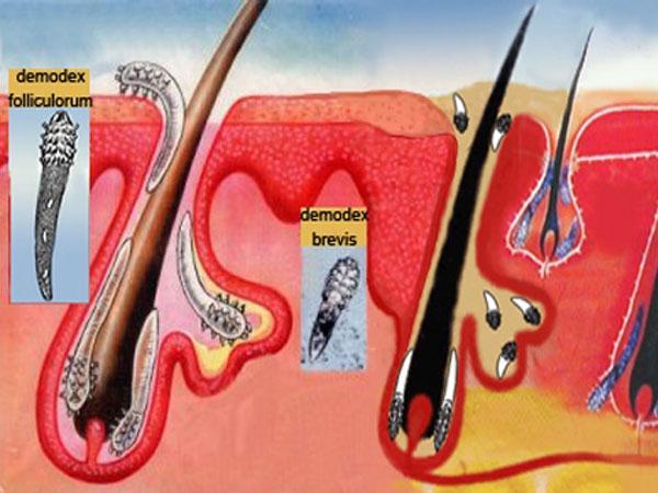 Демодекоз головы : симптомы и лечение демодекоза головы