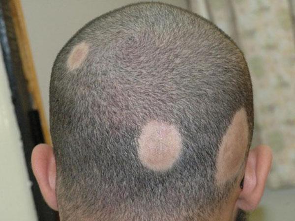 Шелушащиеся пятна на голове под волосами