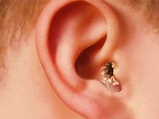В ушах образуются корочки