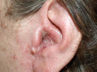 Лечение себорейного дерматита или как избавиться от себореи