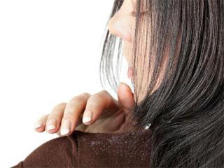 Шампунь от выпадения волос и против перхоти: обзоры и рекомендации