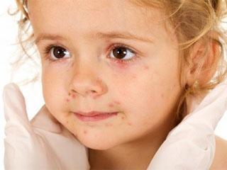 Псориаз у детей: как надолго избавиться от недуга