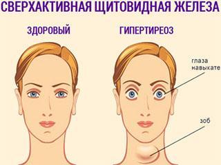 Выпадение волос при тиреотоксикозе