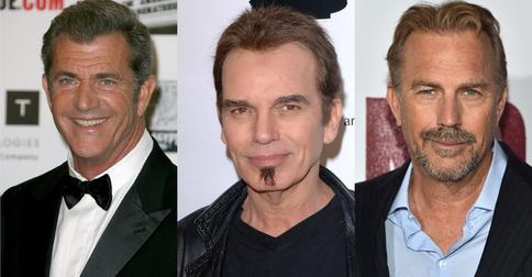6 знаменитых мужчин, которые решились на пересадку волос